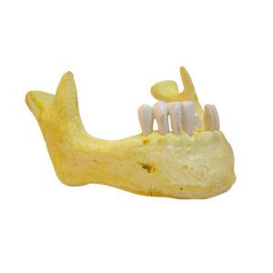 Maxilar inferior parcialmente desdentado